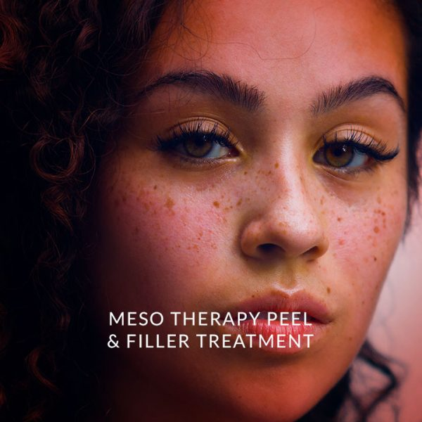 mesotherapy-peel-and-filler-treatment